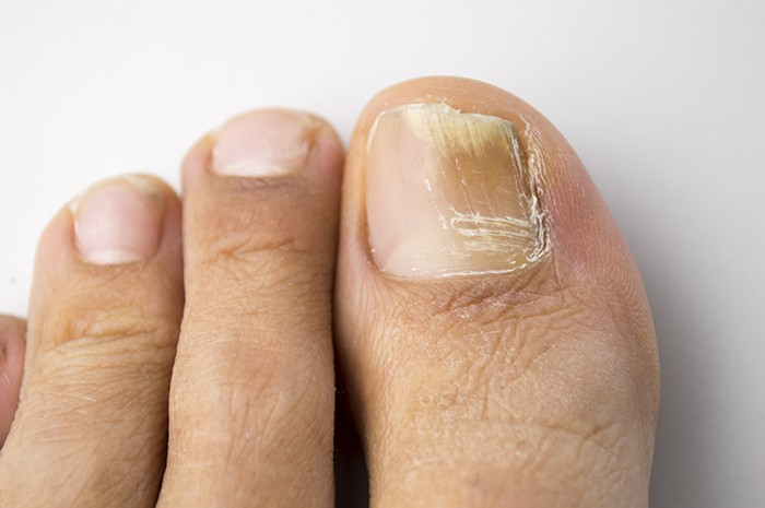 As Well Causing Embarrassment A Fungal Nail Infection Can Be Painful And Sufferers Have Difficulty Finding Comfortable Shoes
